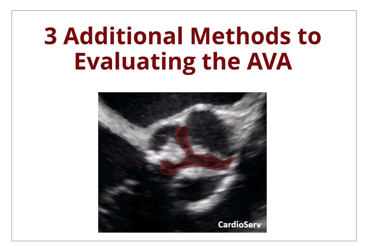 3 Additional Methods to Evaluating the AVA