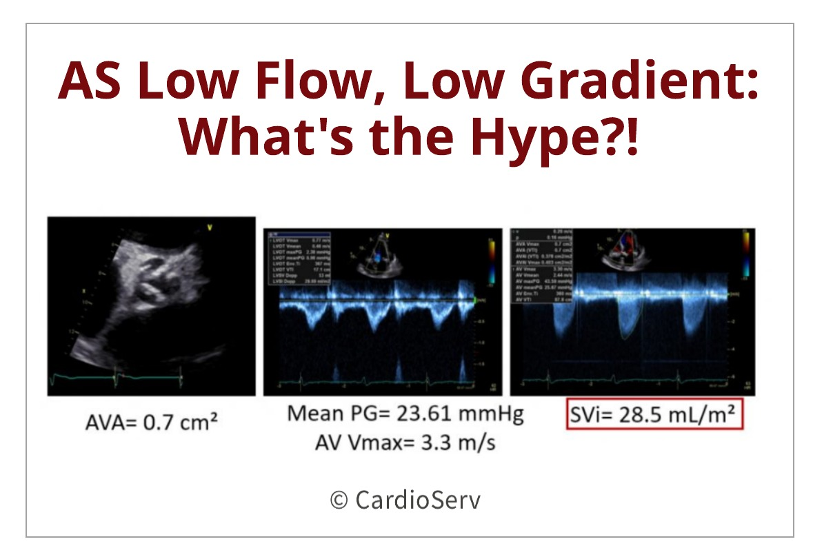 Aortic Stenosis Low Flow, Low Gradient: What's the hype?!