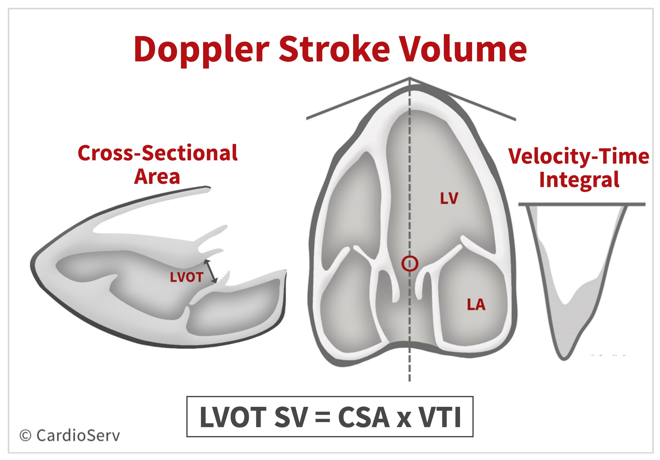 Doppler Stroke Volume Calculation