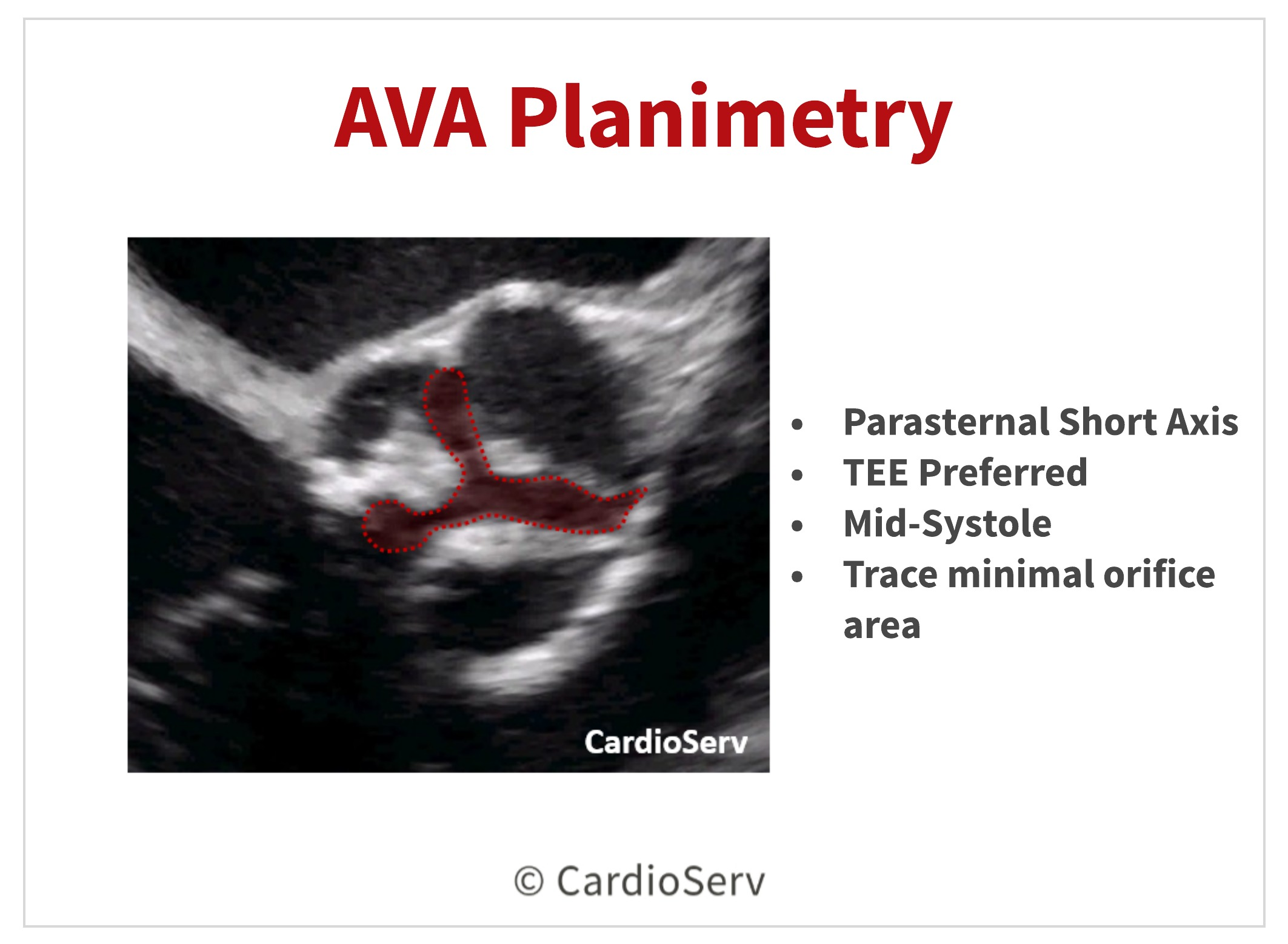 AVA Planimetry Echo Aortic Stenosis