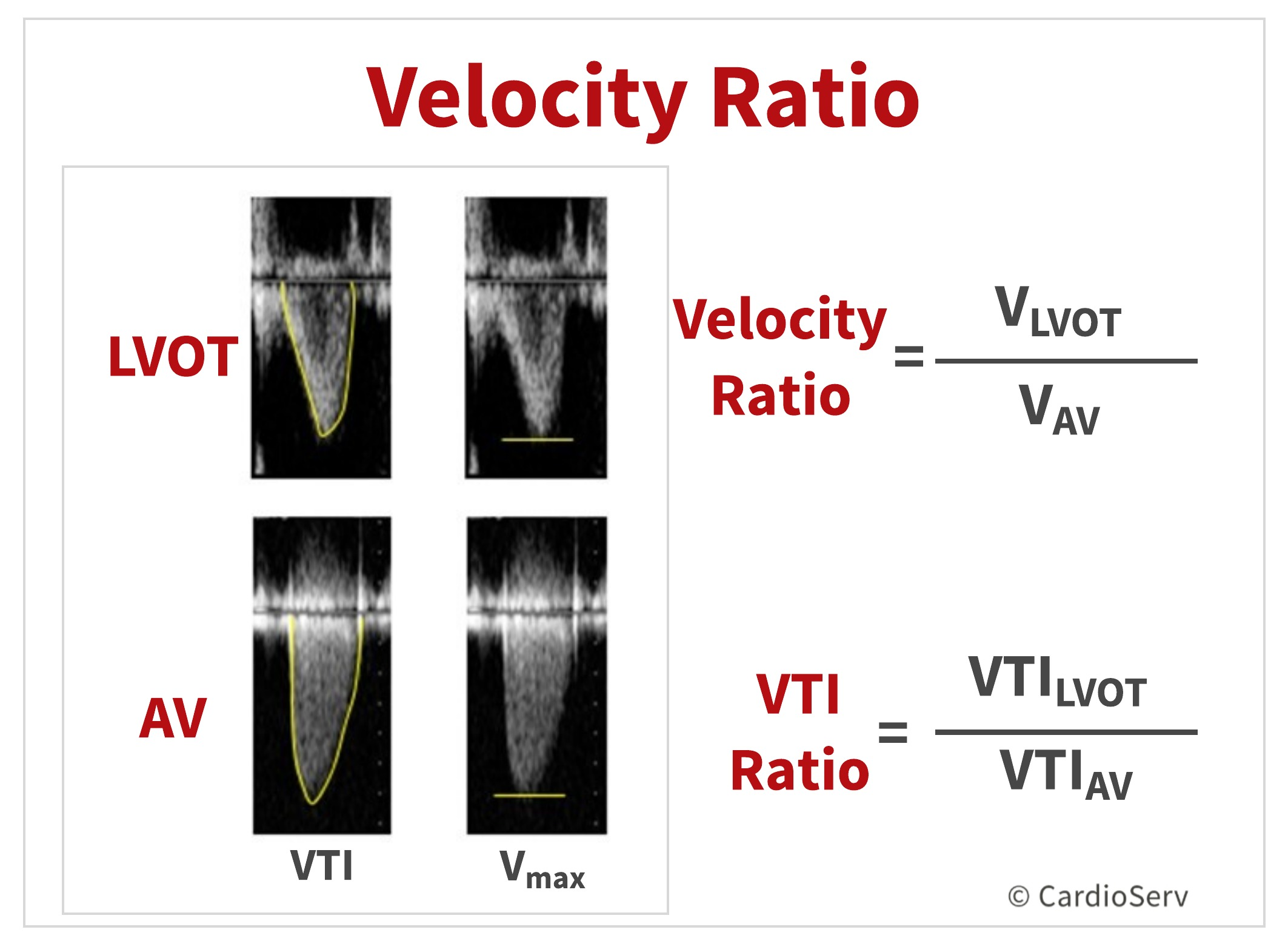 velocity ratio AVA aortic stenosis echo