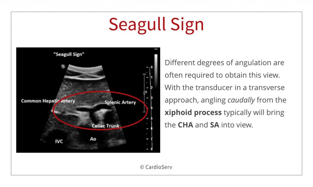 branches of the aorta - visceral ultrasound seagull sign