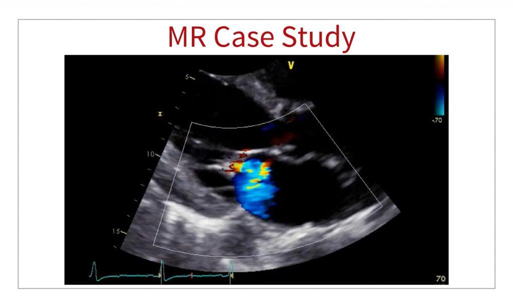 MR echo case study
