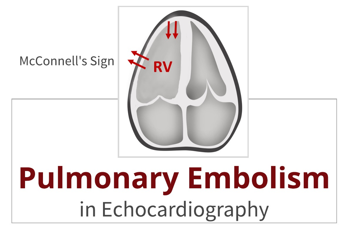 Pulmonary Embolism in Echo
