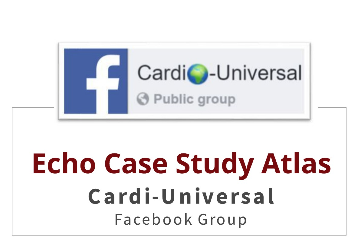 Cardi-Universal – Echo Case Study Atlas!