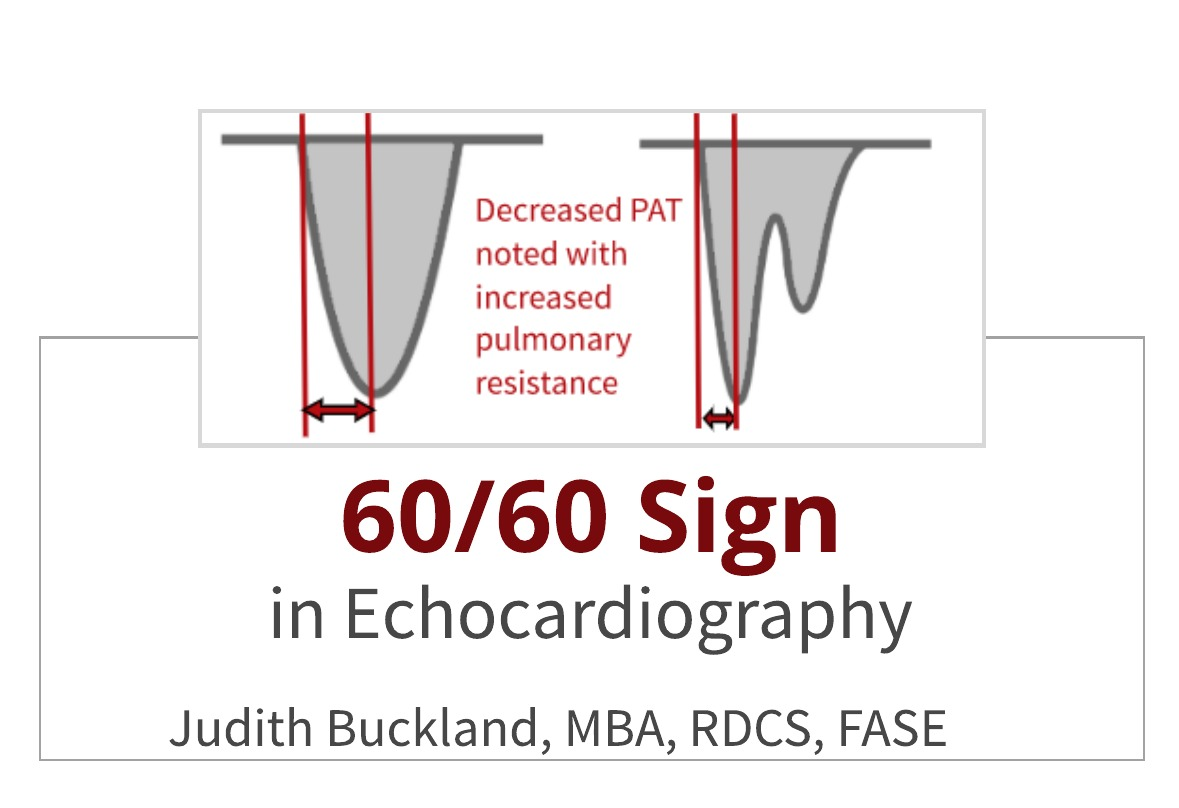 60/60 Sign in Echocardiography