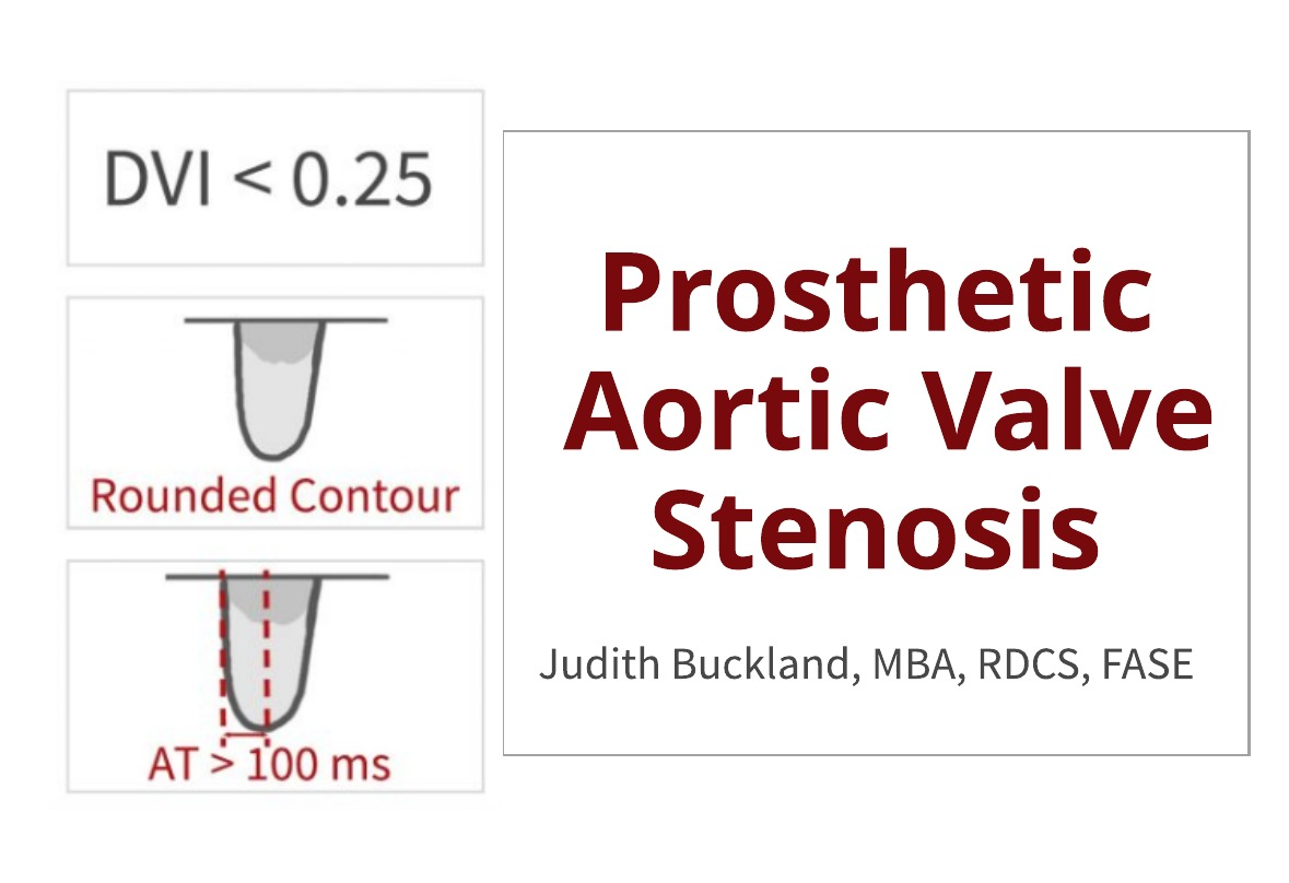 Prosthetic Aortic Valve Stenosis