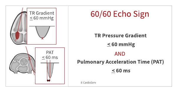 The 60-60 sign in echo is a TR pressure gradient less than 60 and a pulmonary acceleration time less than 60