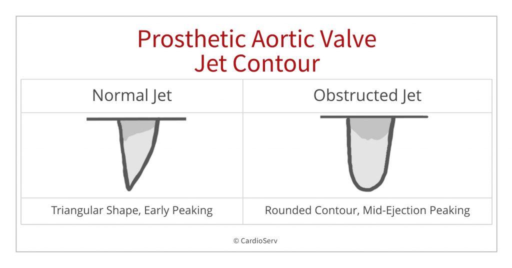 jet contour AS stenosis