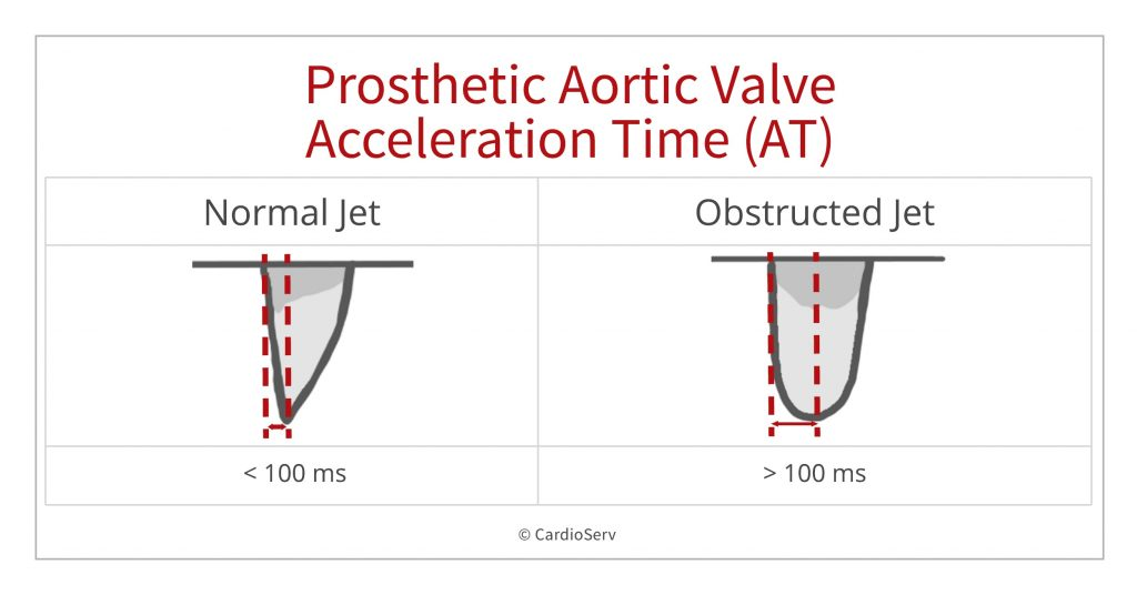 Acceleration time prosthetic aortic stenosis