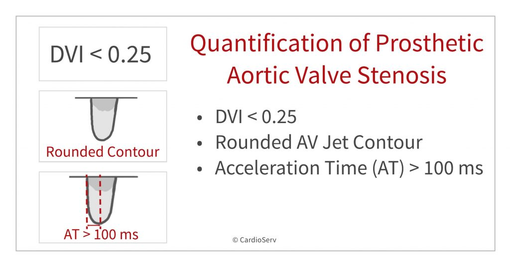 Quantification of prosthetic Aortic valve stenosis