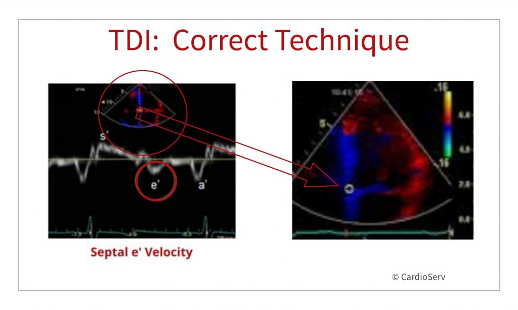 how to perform tissue Doppler diastology echocardiography