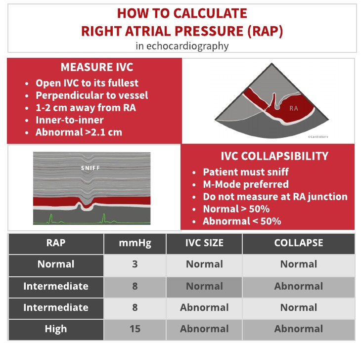 how to estimate right atrial pressure RAP