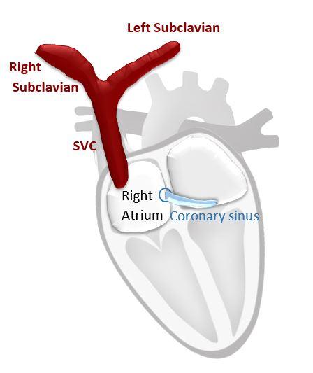 Normal SVC anatomy versus PLSVC